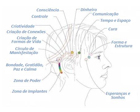 Terapia Barras De Access®